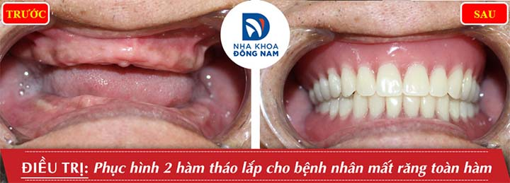 Lắp hàm răng giả