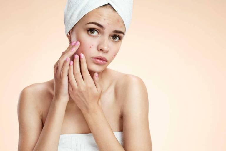 Tình trạng da mặt đột nhiên nổi nhiều mụn có thể do nhiều nguyên nhân gây ra