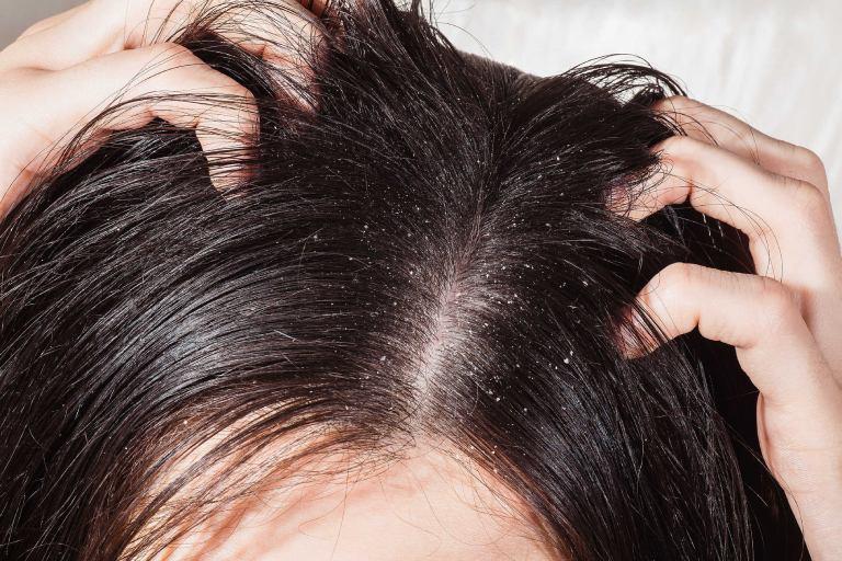 Bệnh nấm da đầu có lây không?