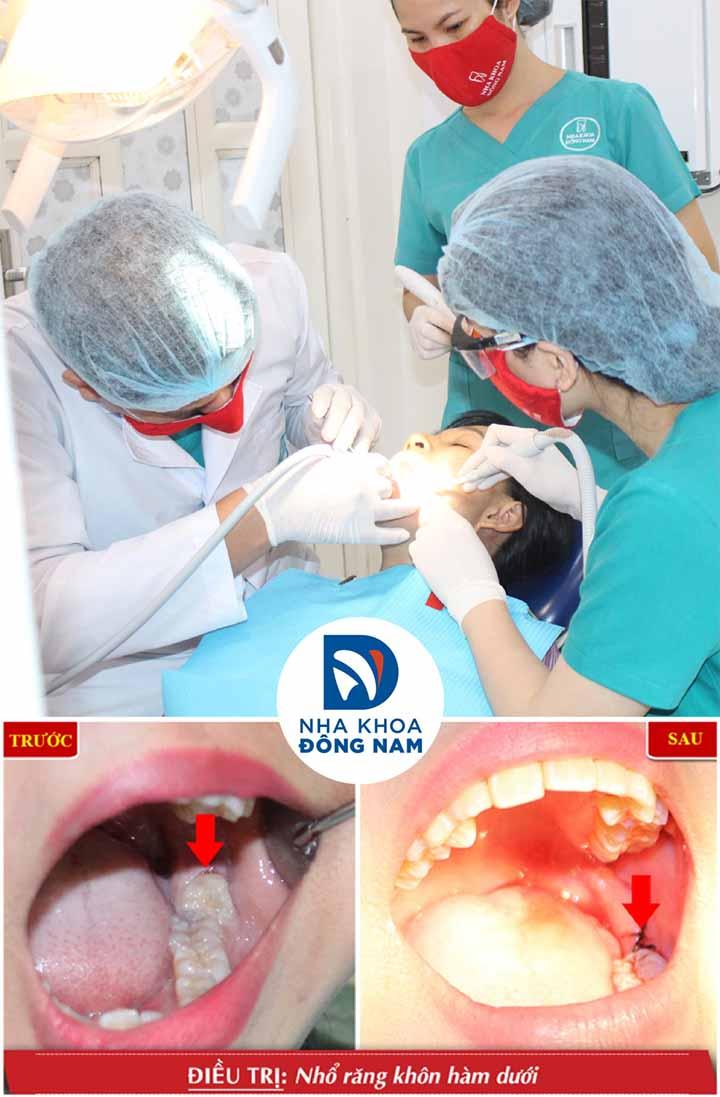 Nhổ răng khôn nha khoa đông nam tphcm