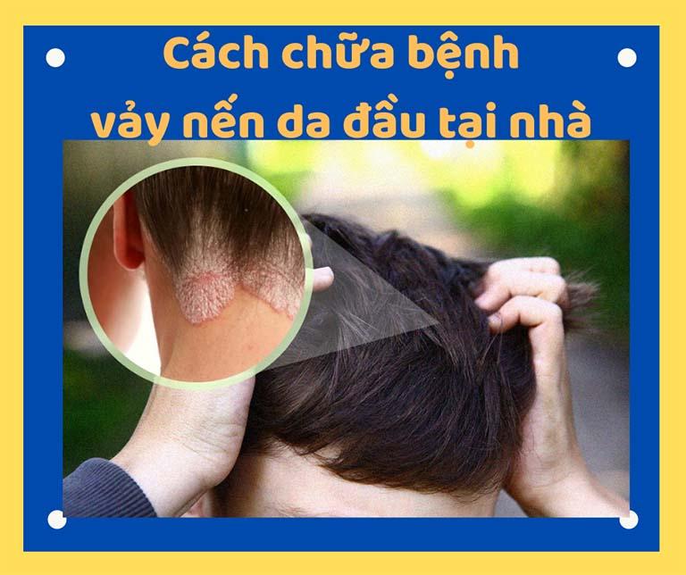cách chữa bệnh vảy nến da đầu