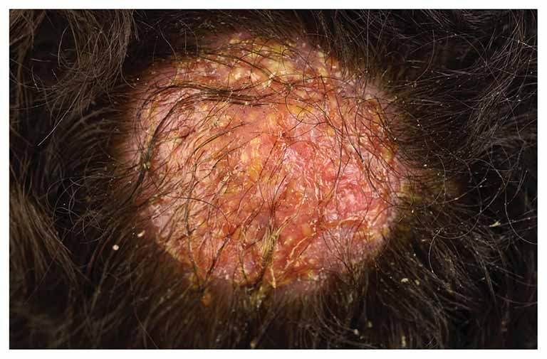 Nấm da đầu ở trẻ em