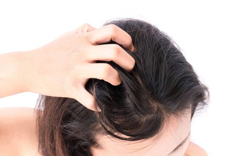 Thuốc trị nấm da đầu nizoral tốt không?