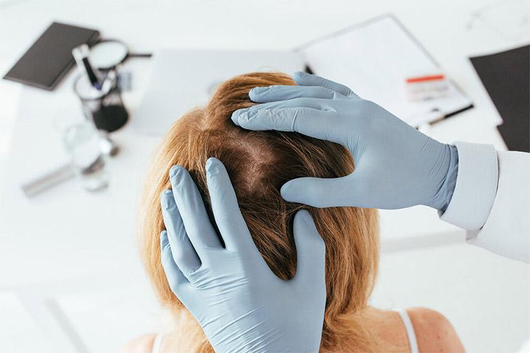Bác sĩ chữa rụng tóc ở TPHCM