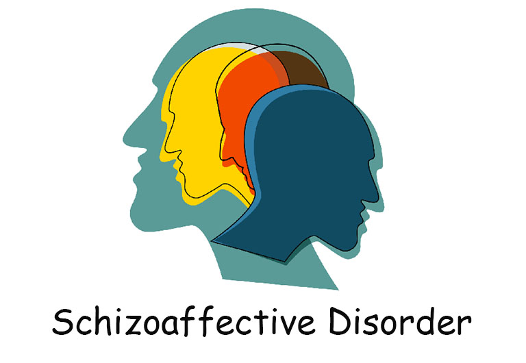 rối loạn phân liệt cảm xúc là gì