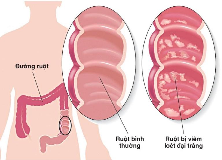 bệnh về đường tiêu hoá thường gặp