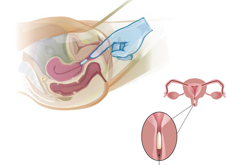 Hướng dẫn cách đặt thuốc vào âm đạo tại nhà