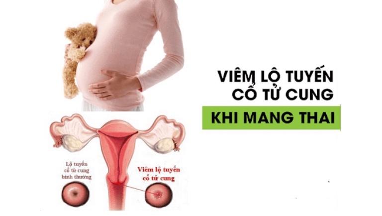 Mang thai bị viêm lộ tuyến có ảnh hưởng thai nhi không?