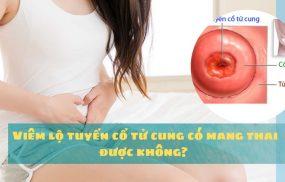 Viêm lộ tuyến cổ tử cung có mang thai được không?