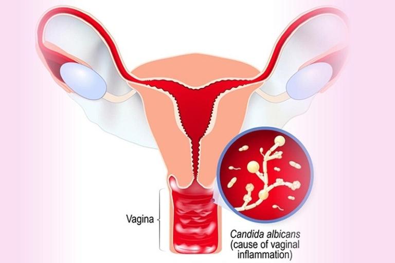 Nhiễm nấm Candida âm đạo