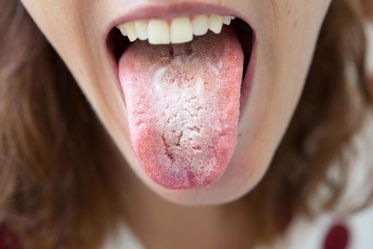 Bị lưỡi trắng đau họng khi nào cần khám bác sĩ?