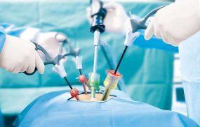Mổ u xơ tử cung bằng phương pháp nội soi