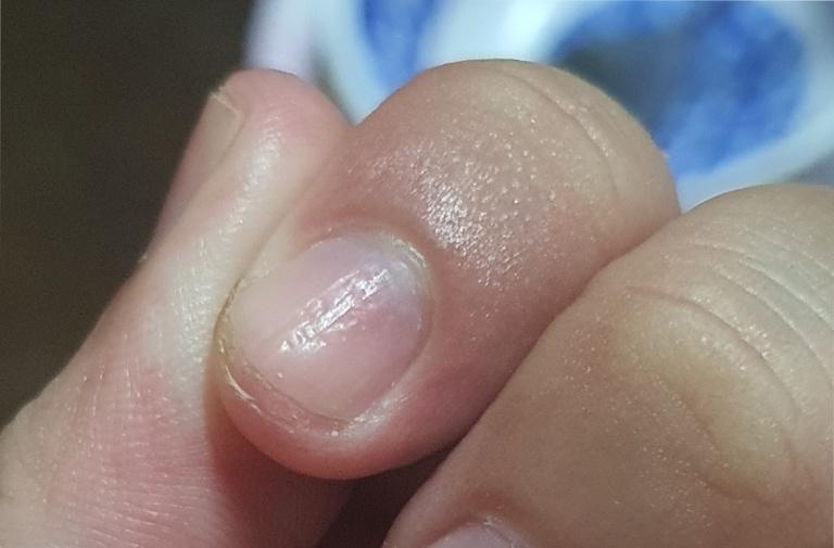 móng tay bị rỗ