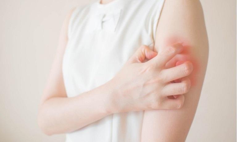 Mề đay nếu không điều trị sớm gây ra ảnh hưởng lâu dài tới người bệnh